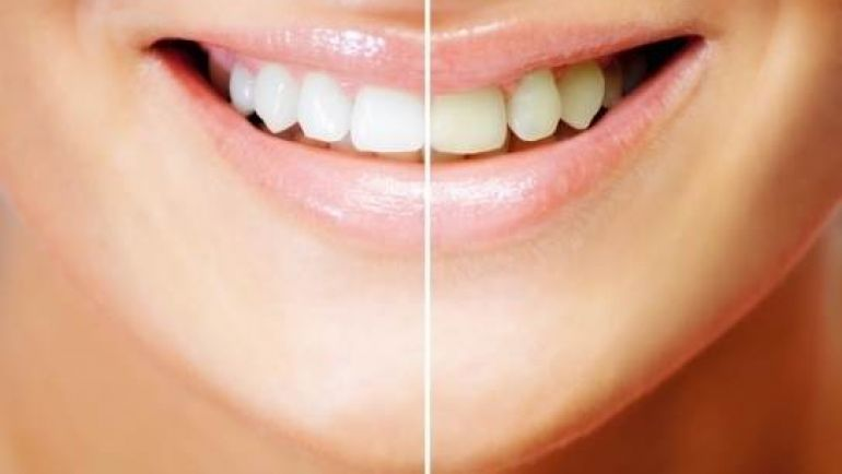 ¿Por qué amarillean los dientes a pesar del cepillado diario?